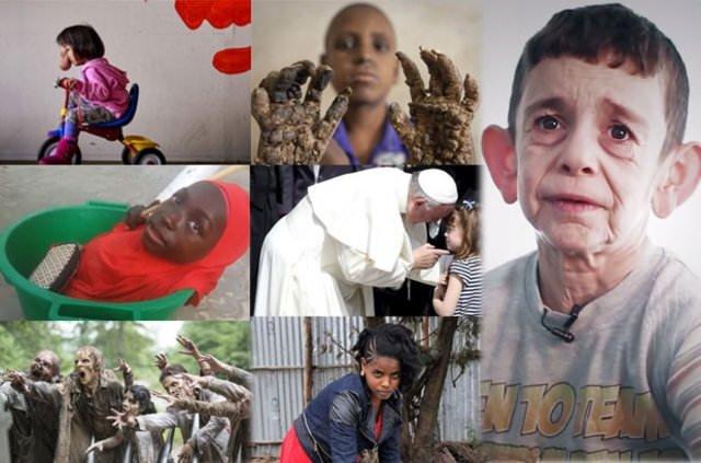 İşte en ilginç hastalıklar!