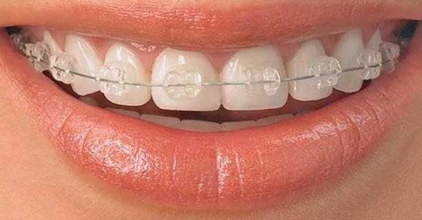 SGK diş teli tedavisi fiyatını karşılıyor mu? 2020 devlette ve özelde diş teli fiyatları nedir?