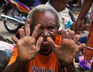 Korkunç olay! El ve ayak parmaklarını kesip yediriyorlar...